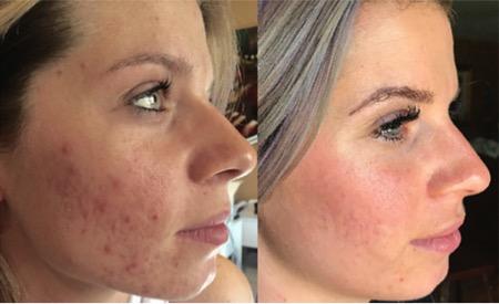 Foto de antes y después de un tratamiento de microneedling